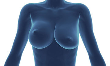 breast asymmetry correction procedure