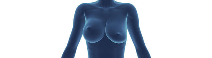 breast asymmetry - 3d scan image - dr mark magnusson