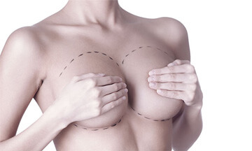 breast enlargement - augmentation - breast surgery with Dr Magnusson