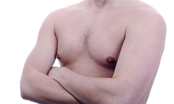 male breast reduction - gynecomastia - dr magnusson