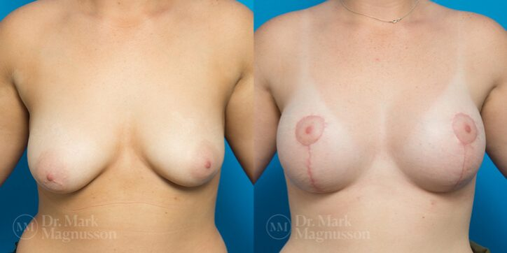Breast_Asymmetry_Correction_1_