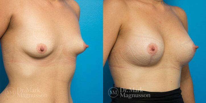 Breast_Asymmetry_Correction_2_