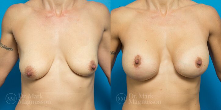 Breast_Asymmetry_Correction_3_