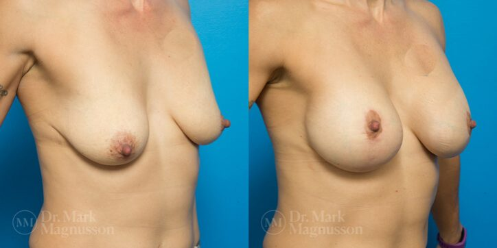 Breast_Asymmetry_Correction_4_