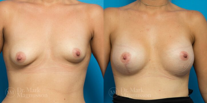 Breast_Asymmetry_Correction_6_