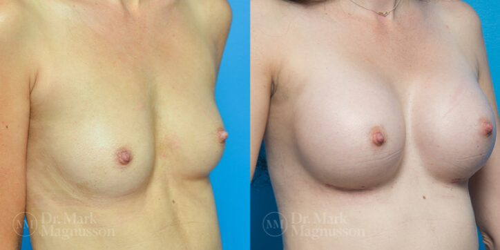 Breast_Asymmetry_Correction_7_
