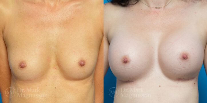Breast_Asymmetry_Correction_8_