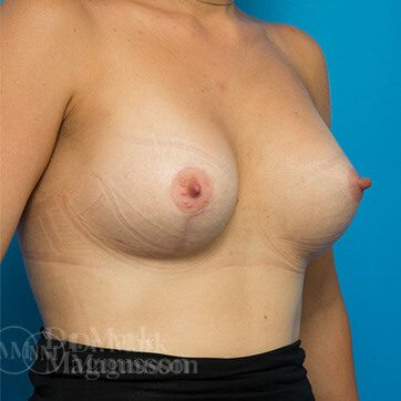 Breast_Asymmetry_Mastopexy01_ba_after_
