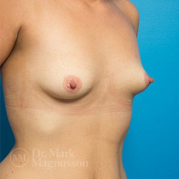 Breast_Asymmetry_Mastopexy01_ba_before_