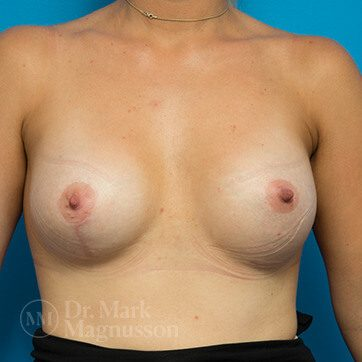 Breast_Asymmetry_Mastopexy01b_ba_after_