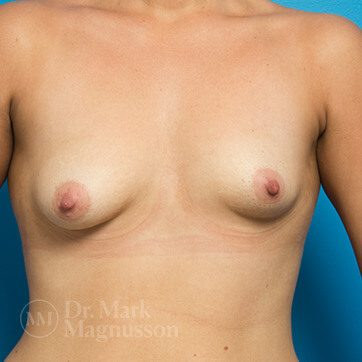 Breast_Asymmetry_Mastopexy01b_ba_before_