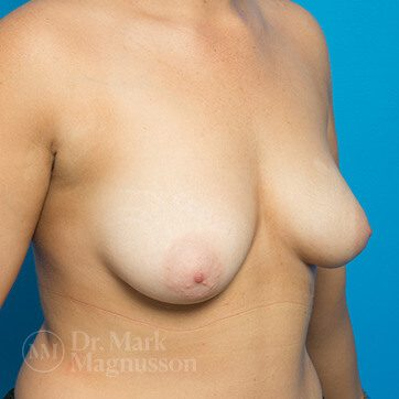 Breast_Asymmetry_Mastopexy02_ba_before_