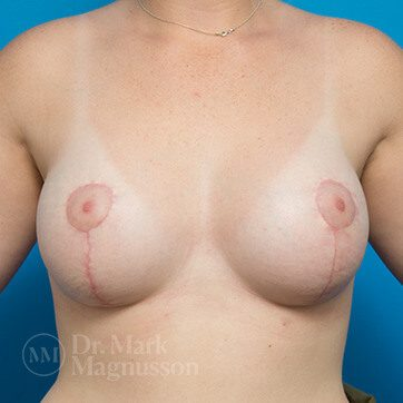 Breast_Asymmetry_Mastopexy02b_ba_after_