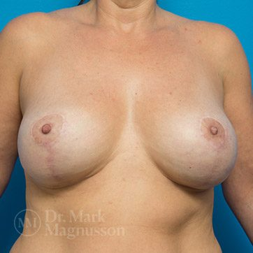 Breast_Aug_Mastopexy01a_ba_after_