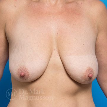 Breast_Aug_Mastopexy01a_ba_before_