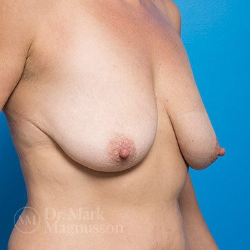 Breast_Aug_Mastopexy01b_ba_before_