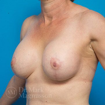 Breast_Aug_Mastopexy02a_ba_after_