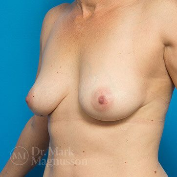 Breast_Aug_Mastopexy02a_ba_before_