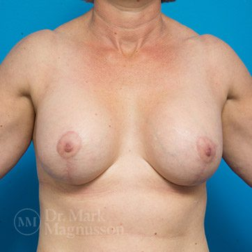 Breast_Aug_Mastopexy02b_ba_after_