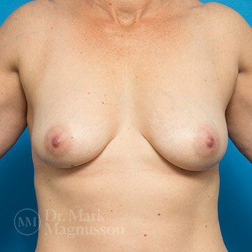Breast_Aug_Mastopexy02b_ba_before_