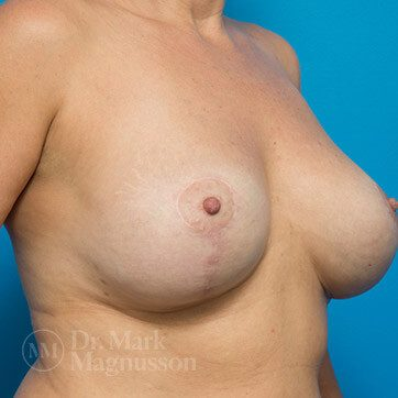 Breast_Aug_Mastopexy_01b_ba_after_