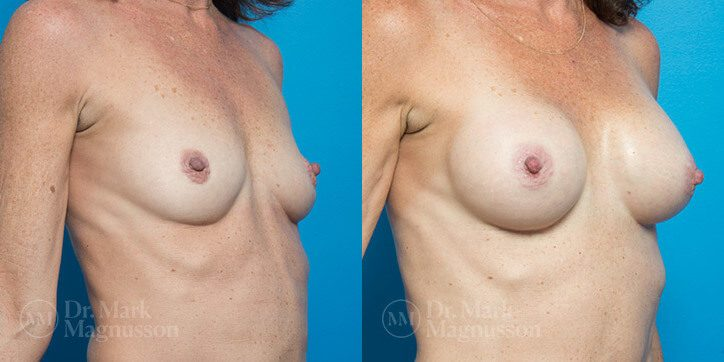 Breast_Augmentation_10_