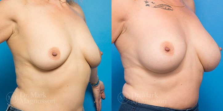 Breast_Augmentation_11_