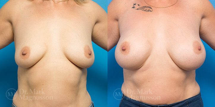 Breast_Augmentation_12_