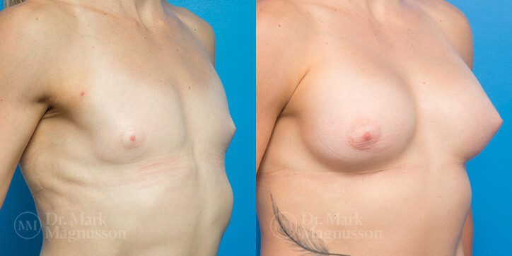 Breast_Augmentation_13_