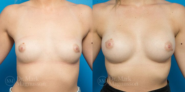 Breast_Augmentation_15_
