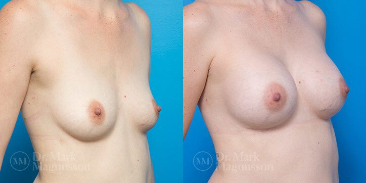 Breast_Augmentation_16_