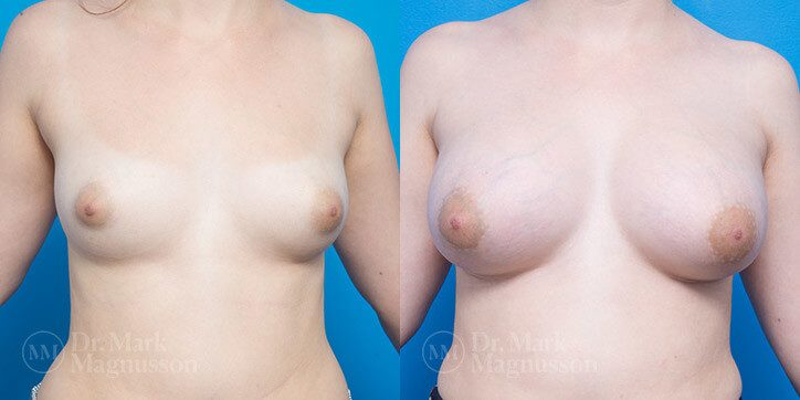 Breast_Augmentation_17_