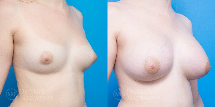 Breast_Augmentation_18_