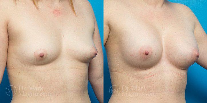 Breast_Augmentation_19_