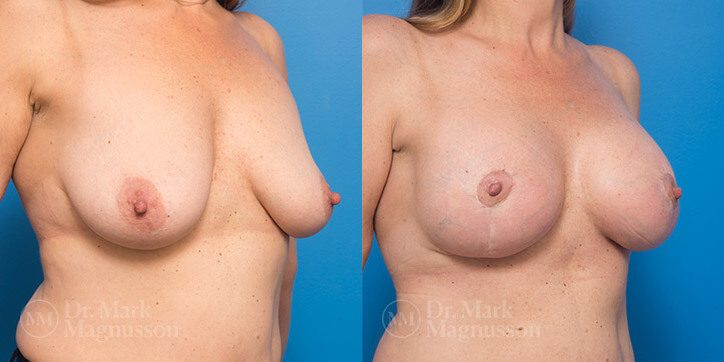 Breast_Augmentation_1_
