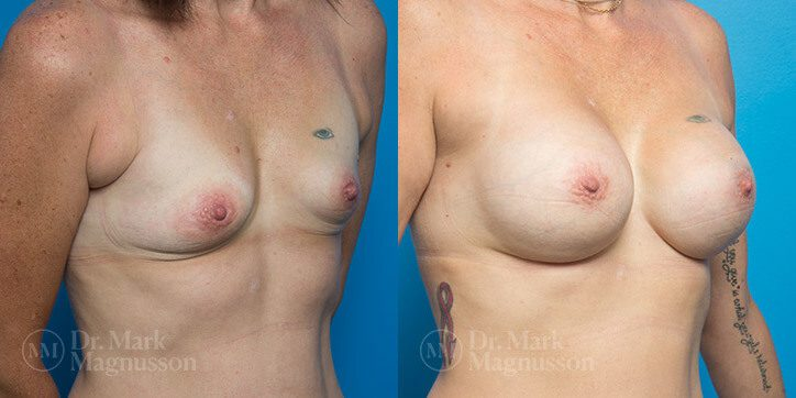 Breast_Augmentation_20_