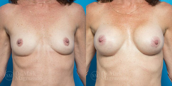 Breast_Augmentation_24_