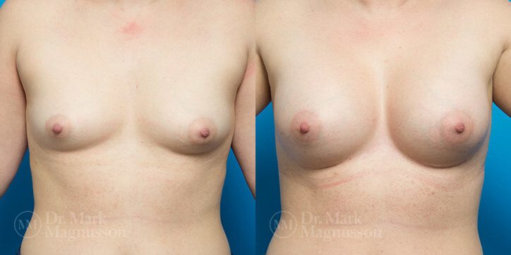 Breast_Augmentation_26_