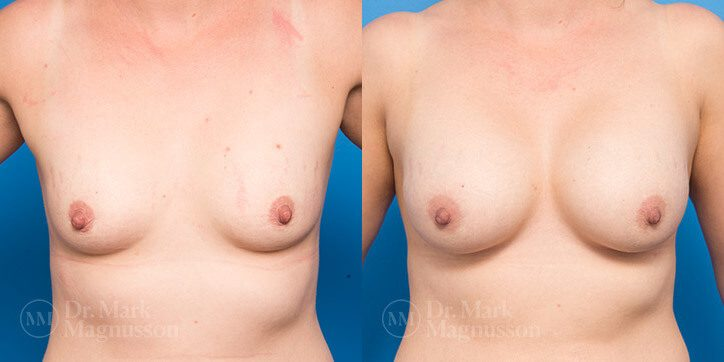Breast_Augmentation_28_