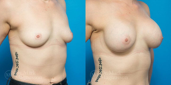 Breast_Augmentation_2_