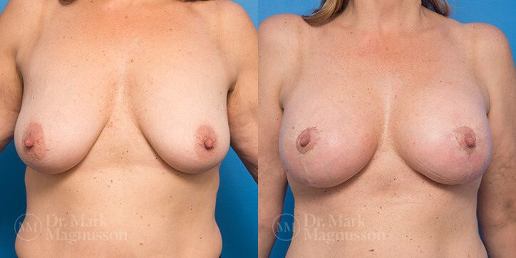 Breast_Augmentation_31_