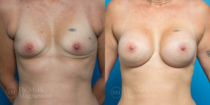 Breast_Augmentation_32_