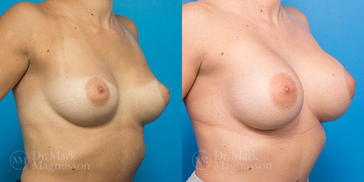 Breast_Augmentation_4_
