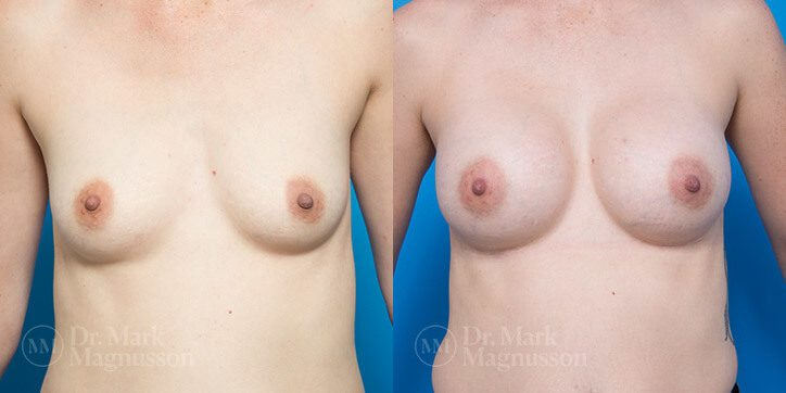 Breast_Augmentation_5_