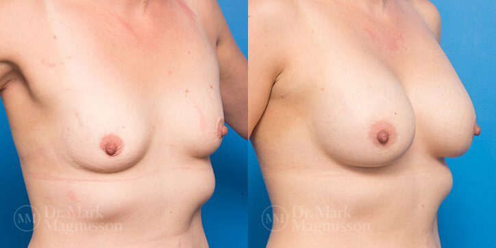 Breast_Augmentation_6_