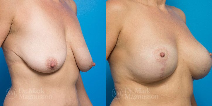 Breast_Augmentation_7_
