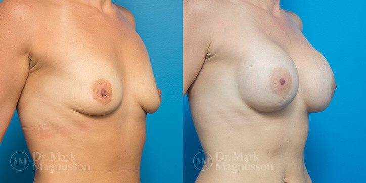 Breast_Augmentation_8_