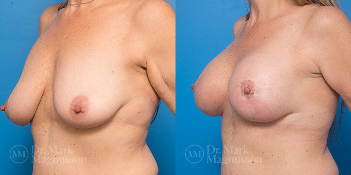 Breast_Augmentation_9_