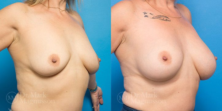 Breast_Lift_2_