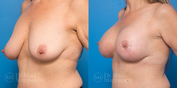 Breast_Lift_3_
